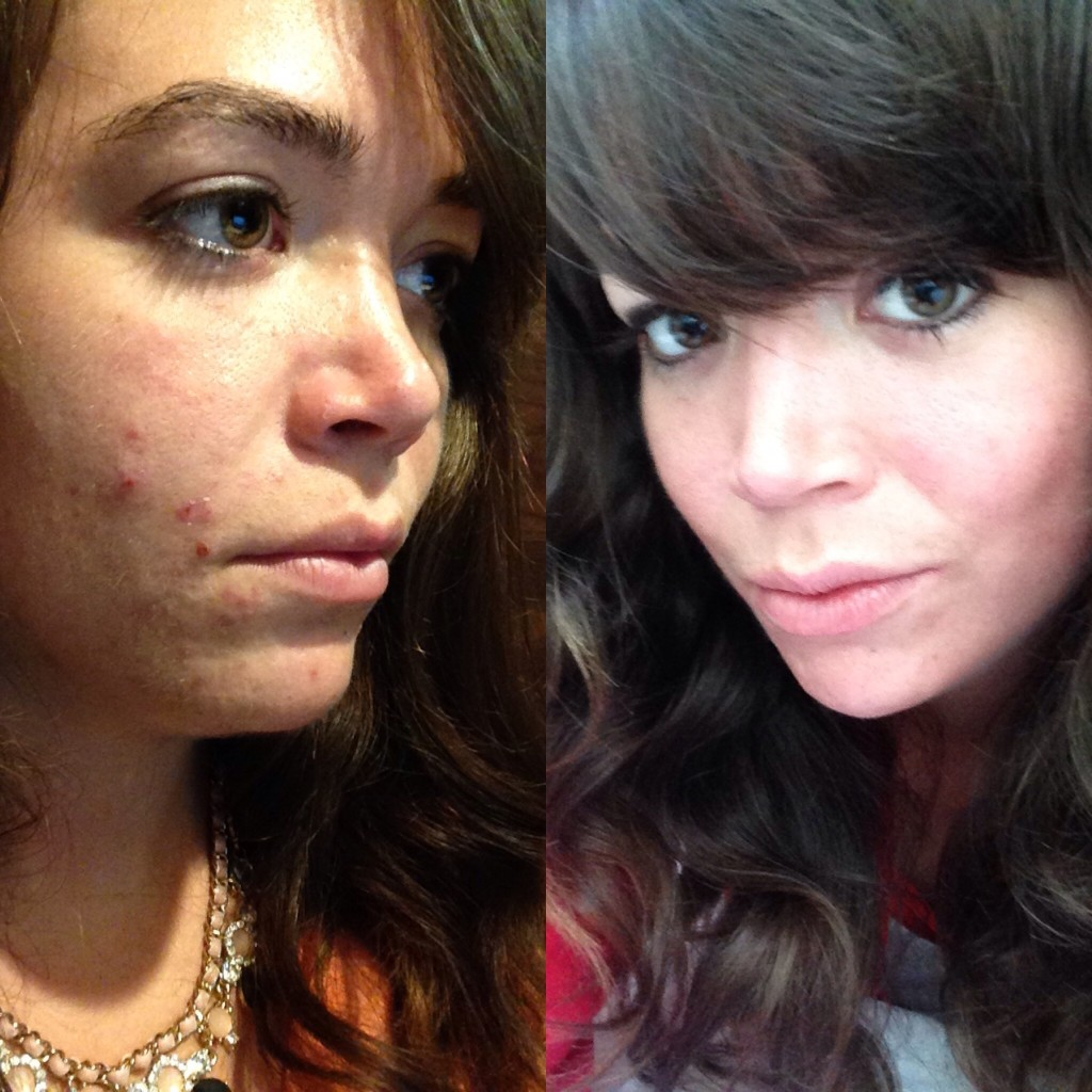 Me before and after accutane